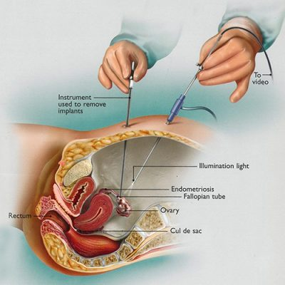 Figure 1: A Laparoscopy is the only way to truly confirm endometriosis